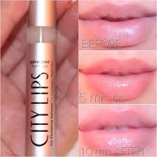 City Lips - การขยายริมฝีปาก - ความคิดเห็น - พัน ทิป - การเรียนการสอน