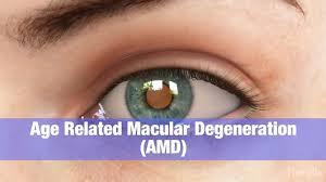 AMD แห้งเป็นรูปแบบที่พบมากที่สุดของการเสื่อมสภาพที่