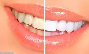iDent Formula - การฟอกสีฟัน - pantip - การเรียนการสอน - ข้อห้าม
